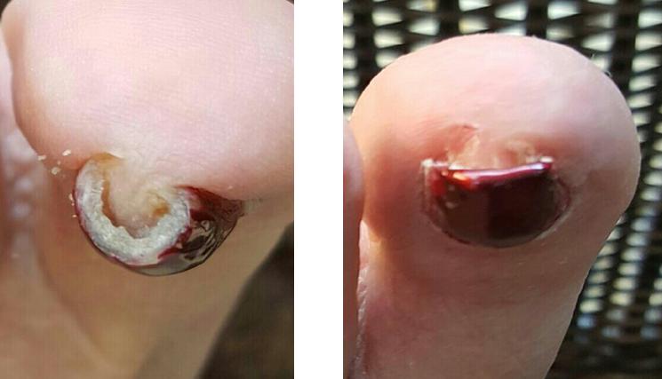 cure ingrown toenail brace